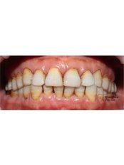 Zirconia Crown - Viet Uc Dental Clinic