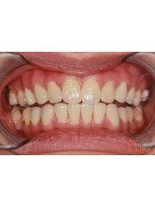 Cosmetic Dentist Consultation - Viet Uc Dental Clinic