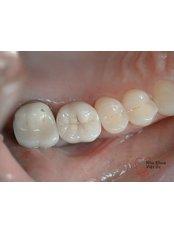 Metal-Free Implants - Viet Uc Dental Clinic