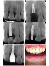 Immediate Implant Placement - Viet Uc Dental Clinic
