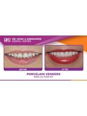 Veneers - Worldwide Dental & Cosmetic Surgery Hospital (fka Dr. Hung & Associates Dental Center)
