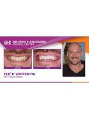Teeth Whitening - Worldwide Dental & Cosmetic Surgery Hospital (fka Dr. Hung & Associates Dental Center)
