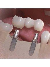 Implant Bridge - I-Dent Dental Implant Center