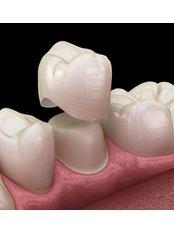 Dental Crowns - I-Dent Dental Implant Center