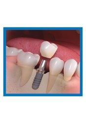 Single Implant - I-Dent Dental Implant Center