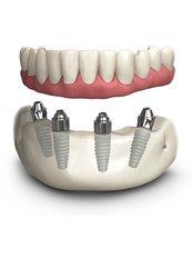Dental Implants - I-Dent Dental Implant Center