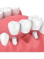 Porcelain Bridge - I-Dent Dental Implant Center