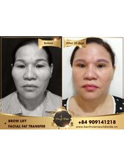 Fat Transfer - Worldwide Dental & Cosmetic Surgery Hospital (fka Dr. Hung & Associates Dental Center)