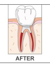 Root Canals - Worldwide Dental & Cosmetic Surgery Hospital (fka Dr. Hung & Associates Dental Center)