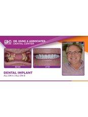 Dental Implants - Worldwide Dental & Cosmetic Surgery Hospital (fka Dr. Hung & Associates Dental Center)