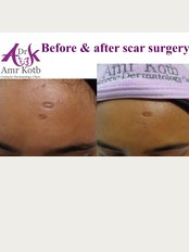 Dr Amr Kotb Dermatology Clinic - Villa 30 al shahid mohamed qenaya street, in front of EGYPTAIR hospital and behind super jet almaza, Heliopolis, Cairo, 11361,