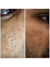 Acne Scars Treatment - Shrey Hospital