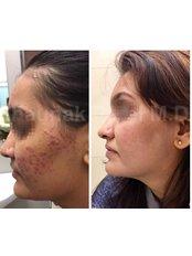 Acne Treatment - Shrey Hospital