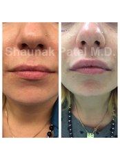 Lip Augmentation - Shrey Hospital
