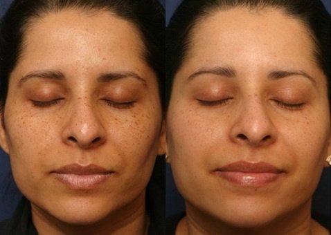 Derma Sculpt Clinic In Bangalore India