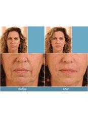 Dermal Fillers - Adare Cosmetics Clinic
