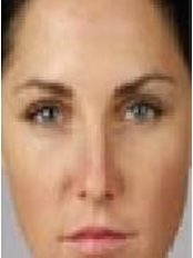 Treatment for Lines and Wrinkles - Westland Row Medical