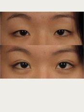 Alka Cosmetic Dermatology - Blepharoplasty / Asian eye lid surgery