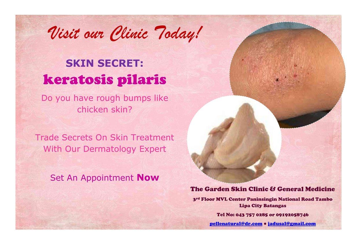 The Garden Skin Clinic in Lipa City, Philippines