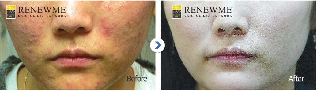 Renewme Skin Clinic Dongdaemun