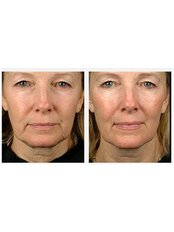Laser Skin Tightening - Proderma Aesthetic Clinics