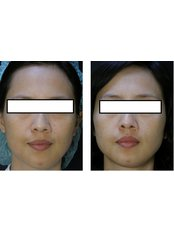 Mole Removal - Proderma Aesthetic Clinics