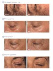 Eye Lift - Tara Skin Clinic