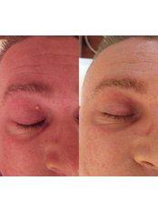 Verruca Removal - Tara Skin Clinic
