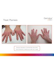 Psoriasis Treatment - Tara Skin Clinic