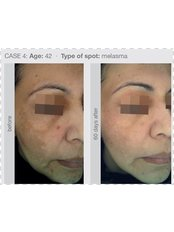 Pigmentation Treatment- Cosmelan® - Tara Skin Clinic