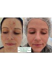 Pigmentation Treatment  - Tara Skin Clinic