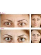 Micro-Botox™ - Elan Medical Skin Clinic - Rayleigh