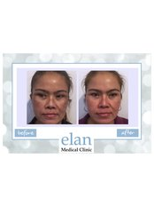 Pigmentation Treatment - Elan Medical Skin Clinic - Rayleigh