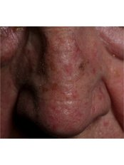 Age Spots Removal - The Harley Street Dermatology Clinic