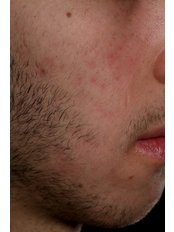 Acne Treatment - The Harley Street Dermatology Clinic