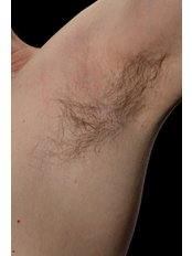 Psoriasis Treatment - The Harley Street Dermatology Clinic