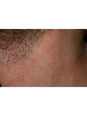 Dermatitis Treatment - The Harley Street Dermatology Clinic