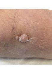 Wart Removal - Park Grange Advanced Skin Clinic