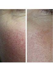 Thread Veins Treatment - Park Grange Advanced Skin Clinic
