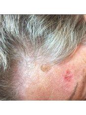 Seborrheic Keratosis Treatment - Park Grange Advanced Skin Clinic