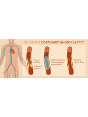 Coronary Angioplasty - Integrated Cardiac Center Coimbatore