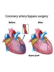 Coronary Artery Bypass Surgery - Integrated Cardiac Center Coimbatore