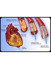 Heart Disease Treatment - Integrated Cardiac Center Coimbatore