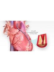 Heart Bypass - Integrated Cardiac Center Coimbatore