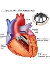 Aortic Valve Replacement - Integrated Cardiac Center Coimbatore