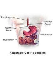 Gastric Band - Valli Hospital