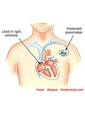 Heart Pacemaker Surgery - Cardio Vascular Clinic