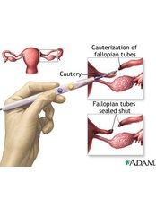 Tubal Ligation - Ponni Hospital Madurai