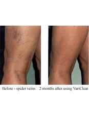 Varicose Veins Treatment - Happi Rehab Center