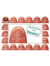 Toenail Fungus Treatment - Happi Rehab Center